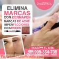 OLVÍDATE EL ACNÉ- Clínica RenacerSpa